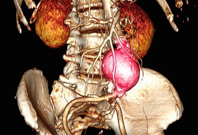 Диагностика аневризмы аорты