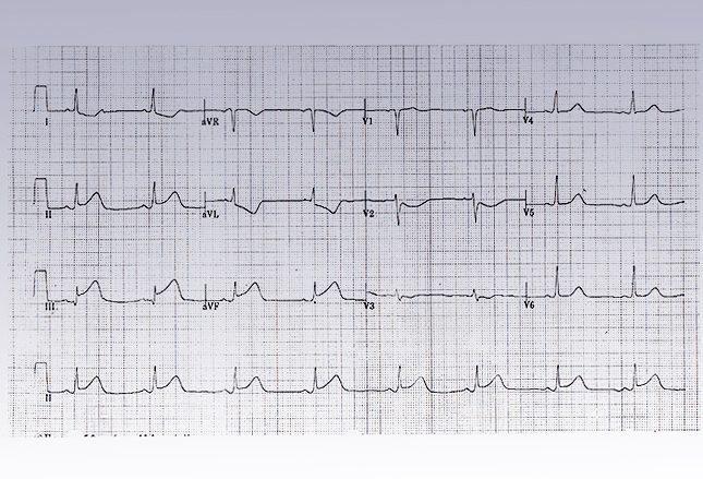 Пропущенный инфаркт миокарда
