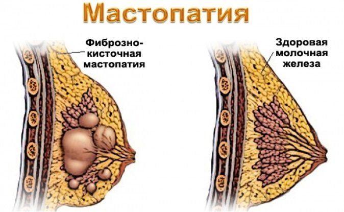 Виды мастопатии.  Лечение каждой из форм