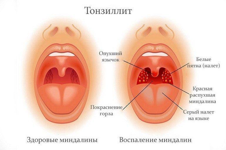 Острый тонзиллит Первые симптомы