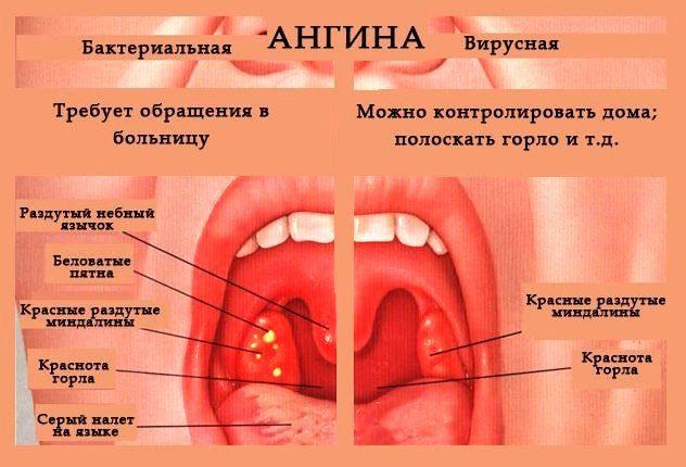 Ангина у детей и подростков, вызванная стрептококком