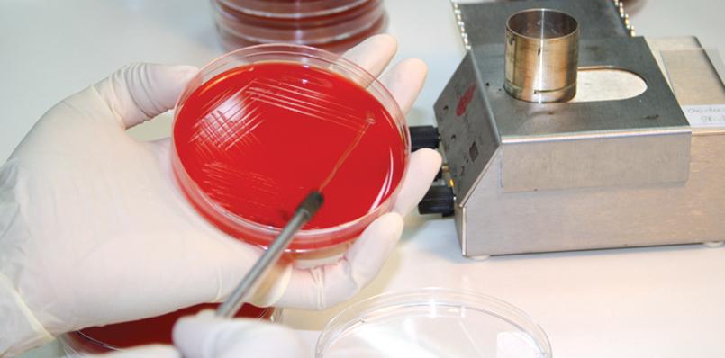 Анализы микробиологический посев