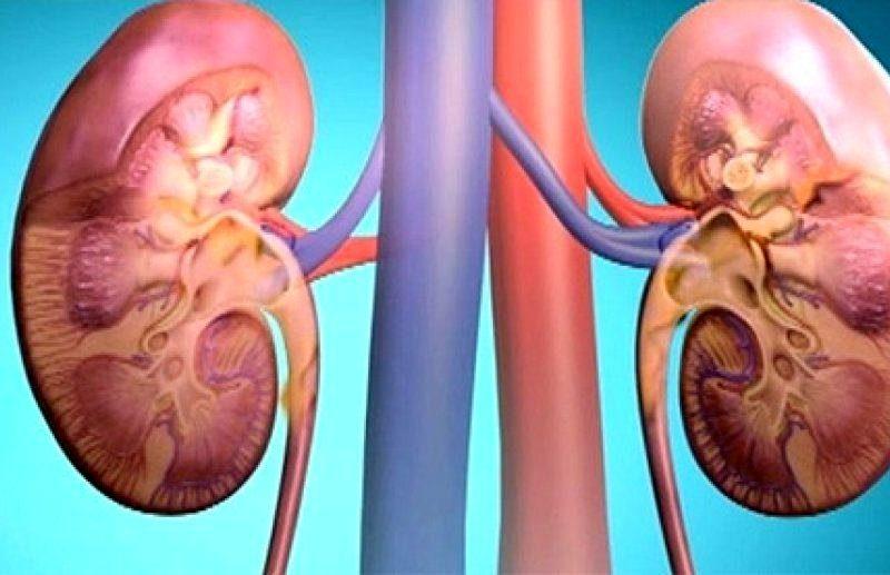 Острый гломерулонефрит как осложнение ангины