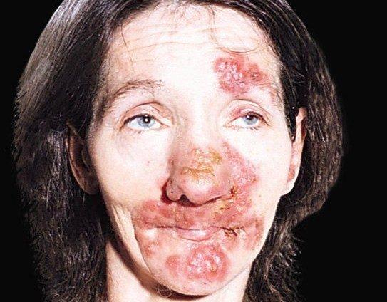 Третичный сифилис.