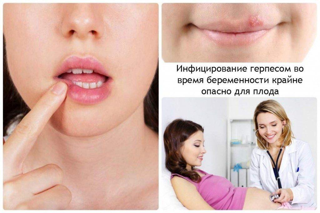Infitsirovanie-gerpesom-vo-vremya-beremennosti-krayne-opasno-dlya-ploda