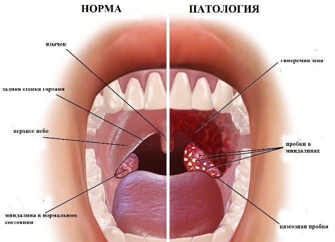 Норма и патология миндалин