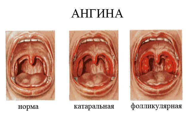 Подробно о каждом из видов ангины (тонзиллита)