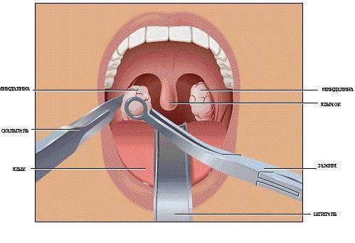 Хирургическое вмешательство при флегмонозной ангине