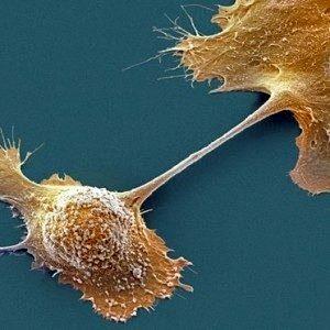 Новый препарат заставляет иммунную систему проснуться для борьбы с одним из самых смертельных видов рака