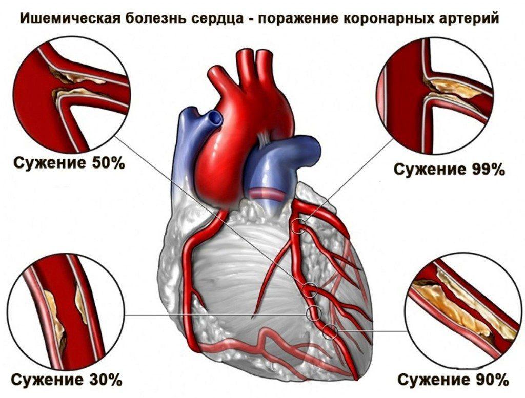 Признаки нестабильной стенокардии