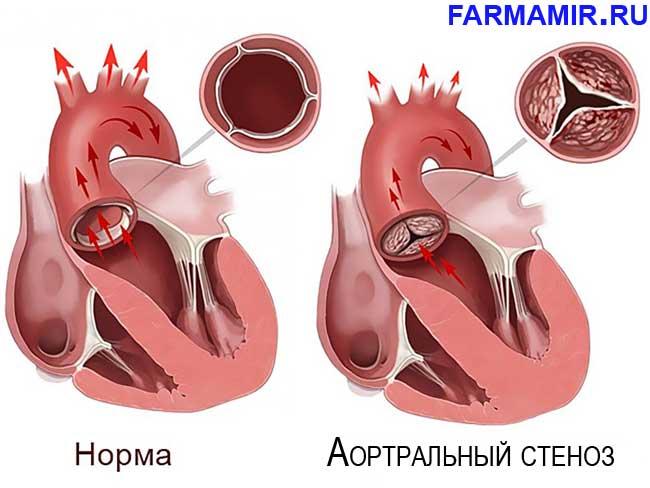 Аортральный стеноз