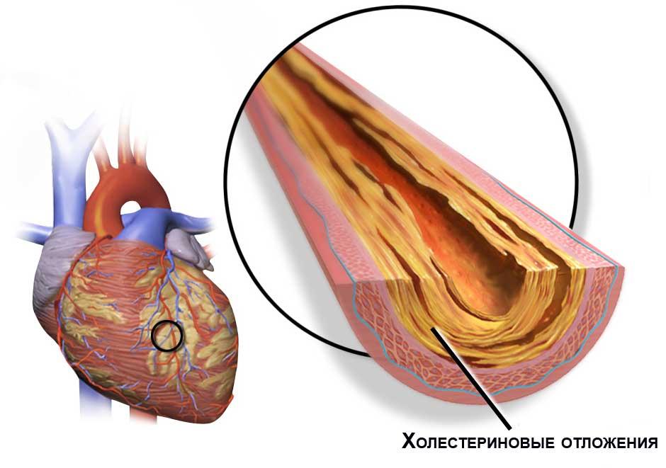 холестерин в сосудах сердца
