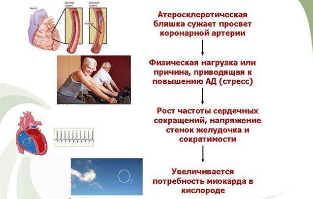 Ягоды боярышника – средство №1 в лечении стенокардии