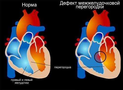 Порок сердца - причины, симптомы, диагностика и лечение