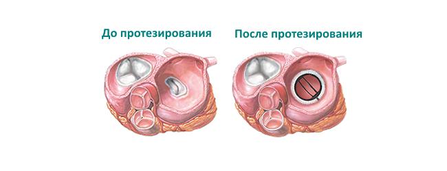 Протезированные клапаны и беременность