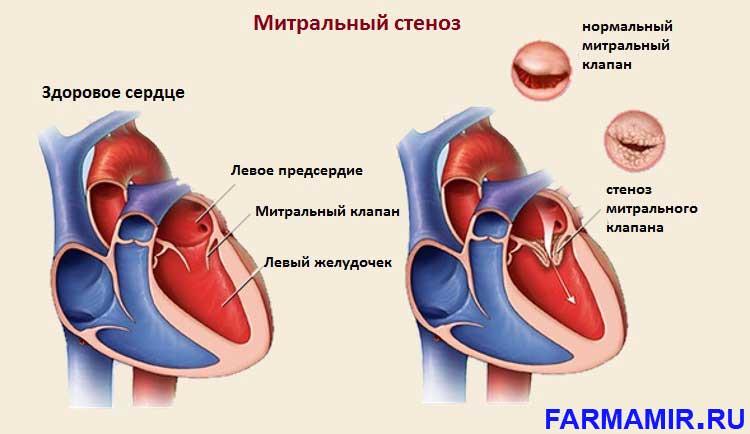 Стенозы митрального клапана