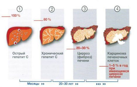 Вирусный гепатит С («ласковый убийца»)