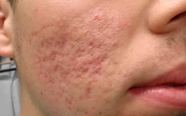 Неэстетичные последствия после перенесенной герпетической инфекции