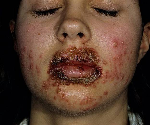Герпес у пациента с тяжелым иммунодефицитом