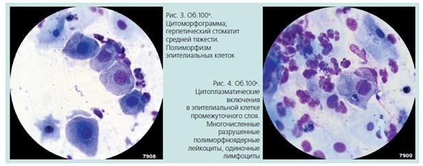 Цитоморфологический метод