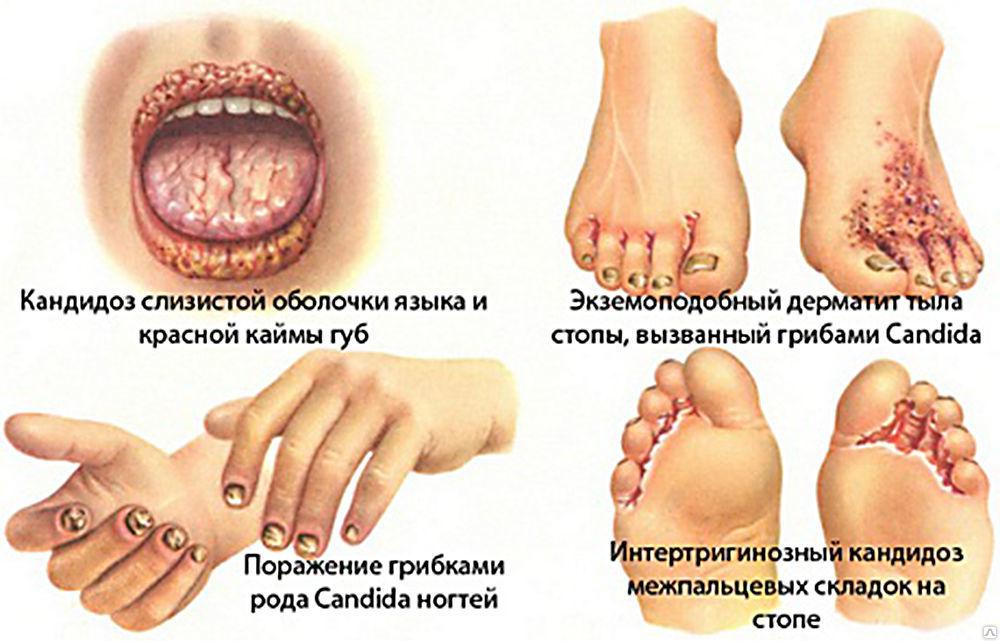 Классификация бактерий