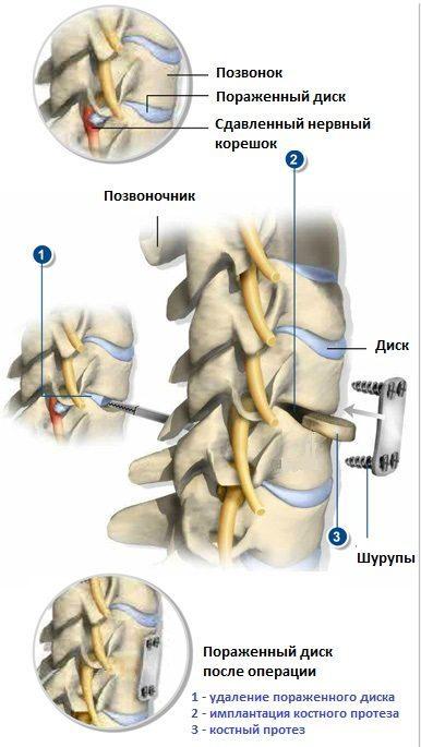 Рисунок 1. Передняя шейная дискэктомия и спондилодез.