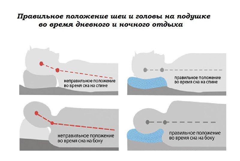 Рисунок 1. Правильное положение шеи во время сна