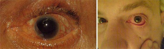 Симптомы поражения зрения