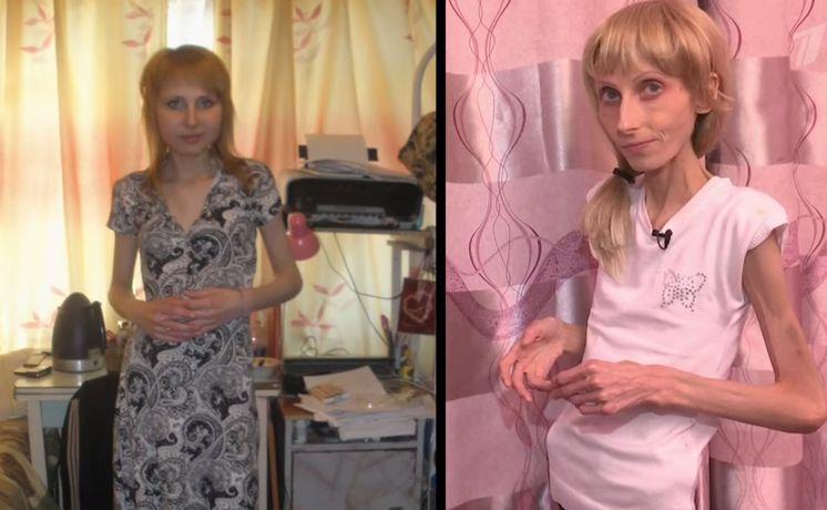 анорексия до и после