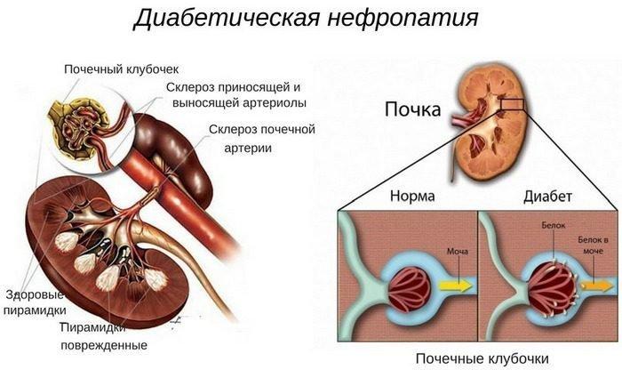 Диабетическая Нефропатия основные сведения