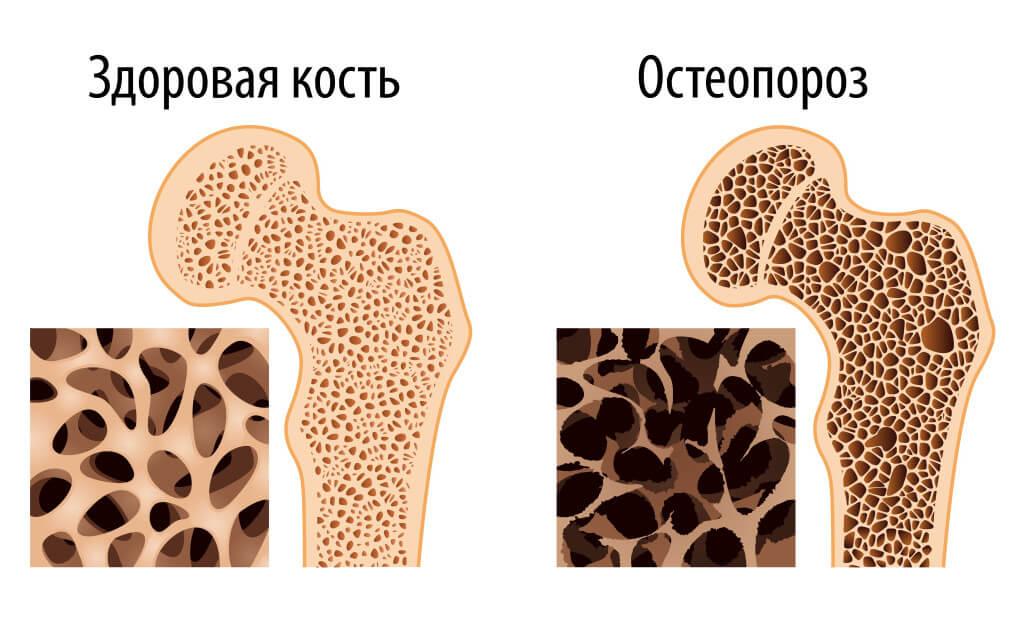 признаки дефицита витамина Д здоровая кость и больная