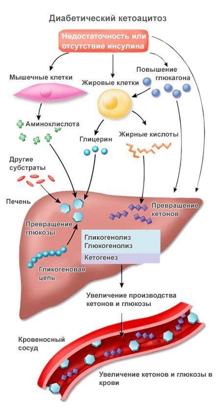 Диабетический кетоацидоз