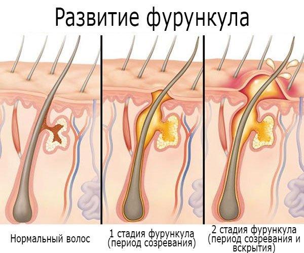 Фурункул в паху у женщин: причины, симптомы и методы лечения