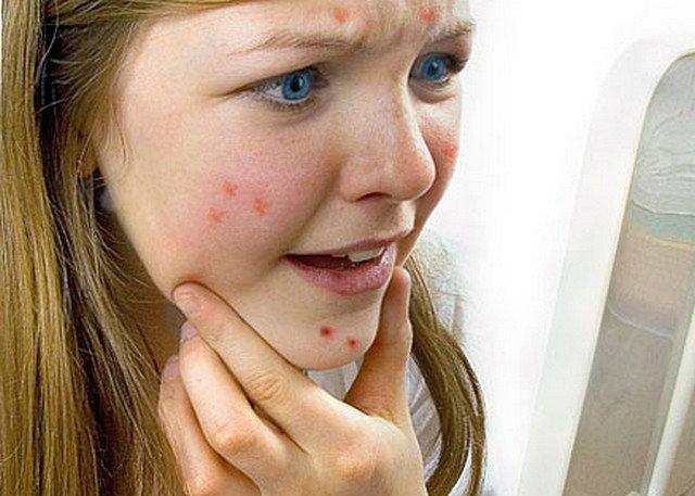 Борьба с прыщами на лице в домашних условиях