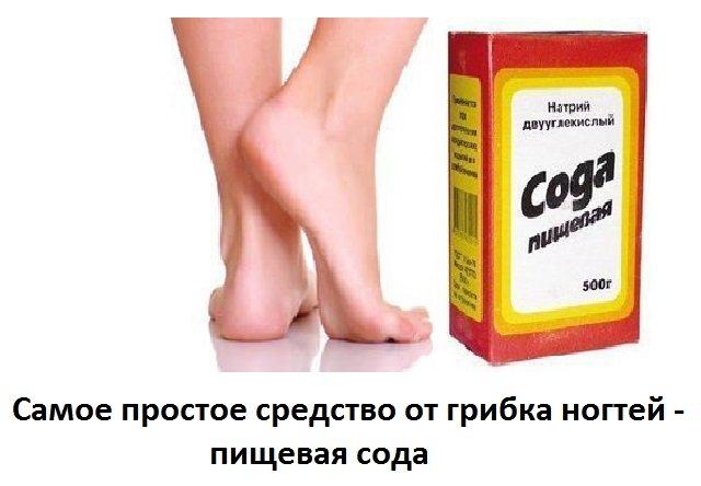 Как избавиться от грибка ногтей на ногах быстро и эффективно