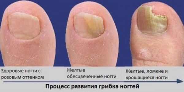 Грибок на ногтях в домашних условиях отзывы 4