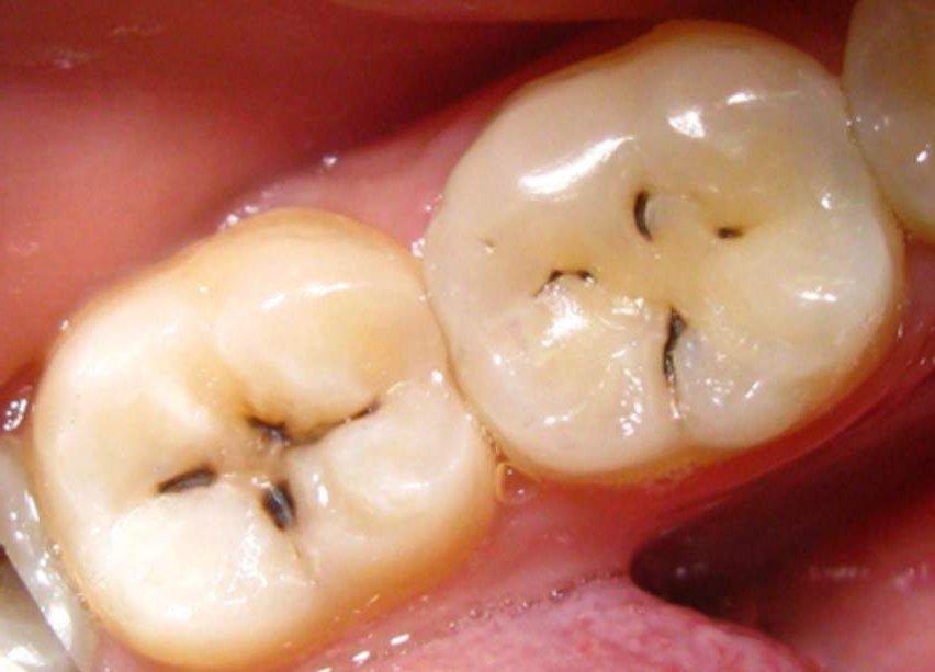 Фтор зубы кариес