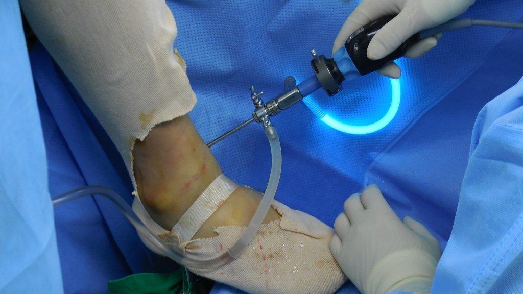 лечение Синовит голеностопного сустава