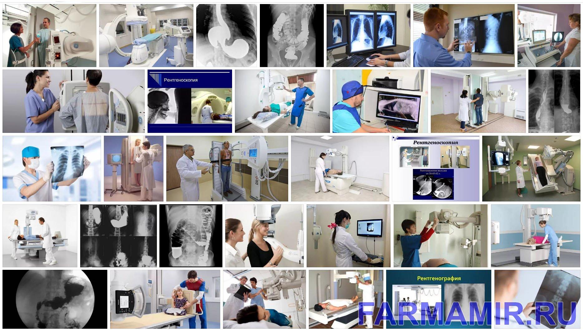 рентгеноскопия что такое коллаж