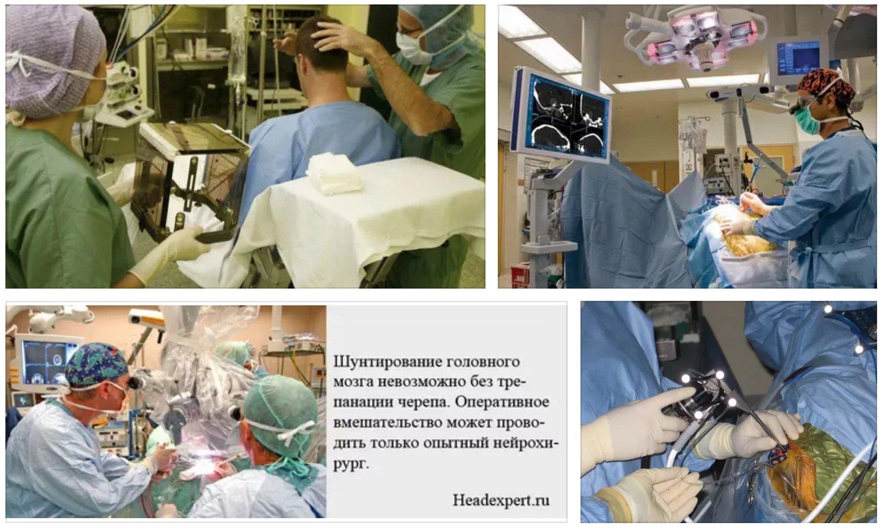 операция на мозге шунтирование