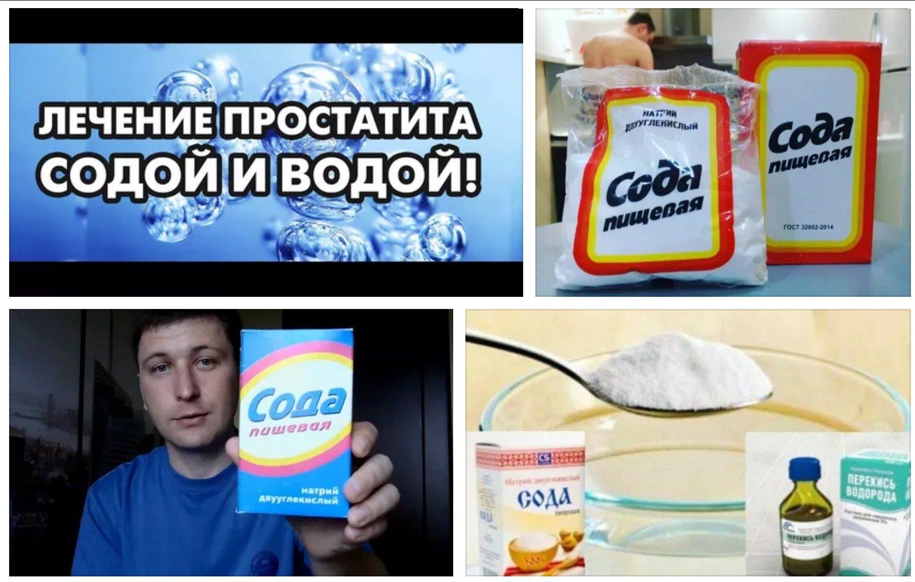 Лечение простатита содой