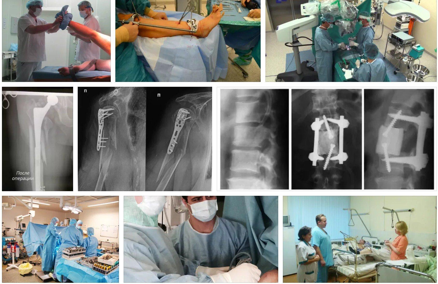 ортопедии больницы №67 лечения периимплантных переломов