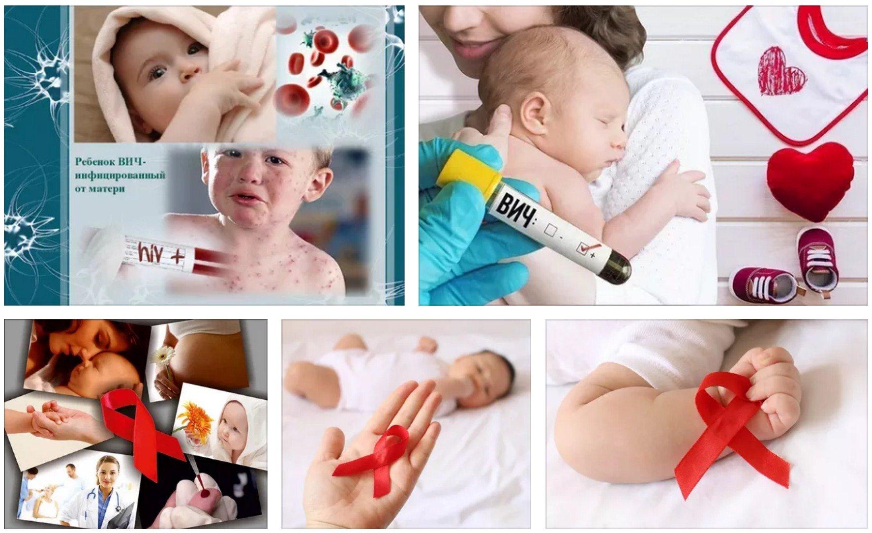 ВИЧ-инфицированный ребенок