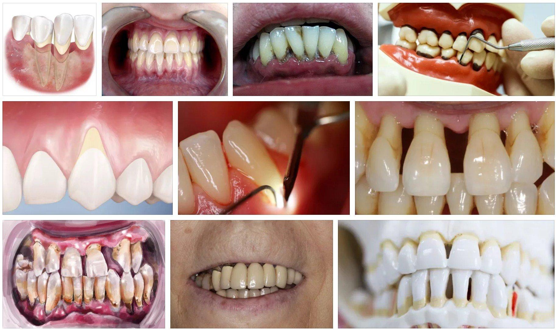 пародонтоз снимки зубов