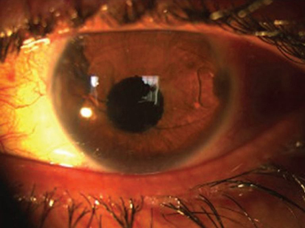 контактная линза глюкоза измерение