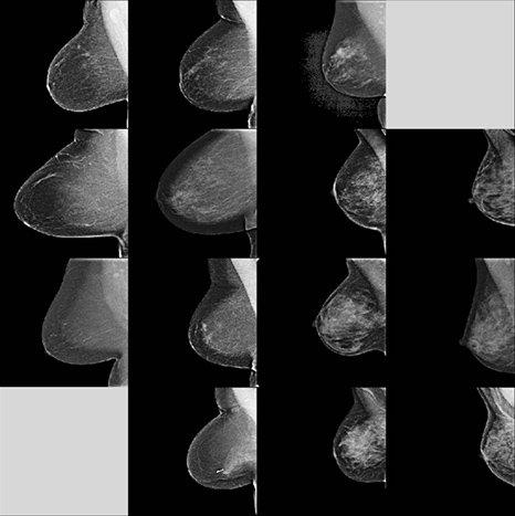 плотность груди на маммограммах