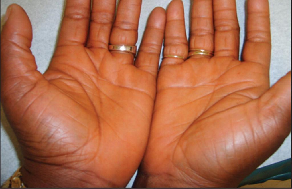 ораньжевые руки