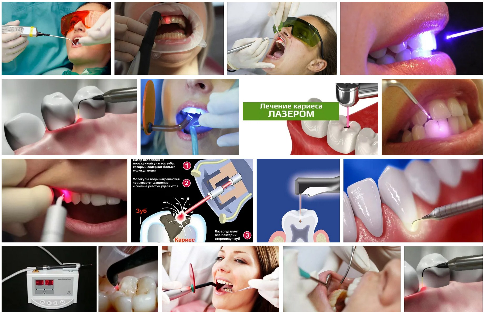 кариес лазер стоматология москва