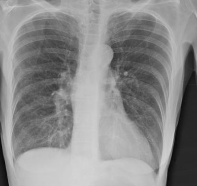 1. Хронические обструктивные заболевания легких