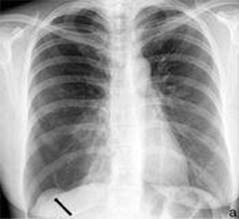 2. Правосторонний пневматорокс